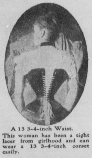 Tightly laced corset. (Photo source: The Washington Herald, June 27, 1909)